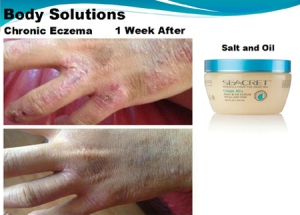 Chronic-Eczema-Seacret-Before-and-After