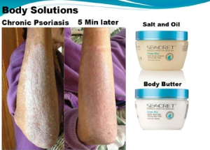 Chronic-Psoriasis-Seacret-Before-and-After