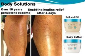 Eczema-Relief-Seacret