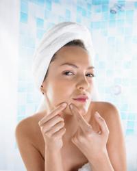 moisture-acne-prone-skin1